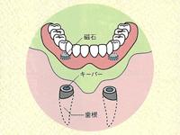 一人一人の患者様にぴったりな入れ歯治療を。