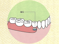 部分入れ歯の場合