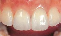 歯と同じ色で奥歯も修復、「グラディア」のご案内。