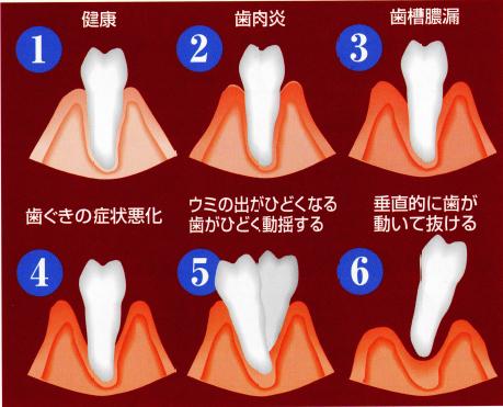 歯周病を放置すると最終的には歯が抜けてしまうこともあります。