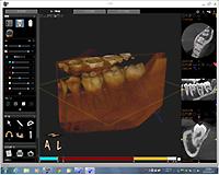 歯科用CT装置のお知らせ